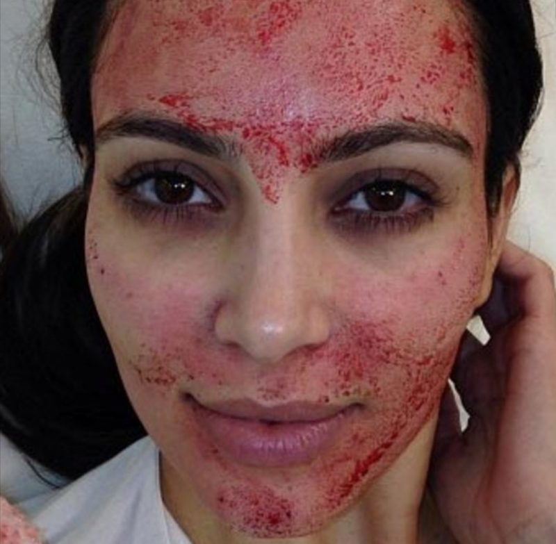 kim Kardashian, micro-needling
